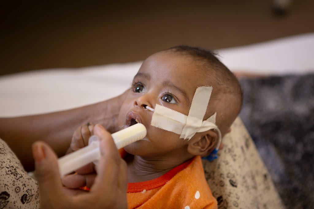Nälänhädästä kärsivä afrikkalaisvauva saa ravintoliuosta